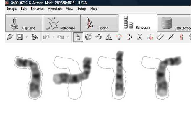 Chromosome adjustments image
